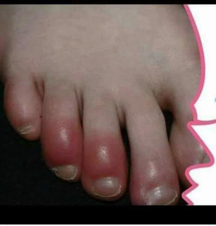 وقايه وعلاج لتورم الاصابع الشتائي او عضة الصقيع