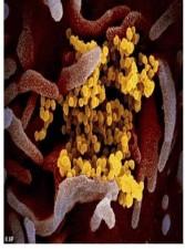 لأول مرة.. صور لفيروس كورونا داخل جسم الإنسان